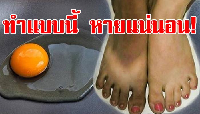 Photo of เคล็ดลับน่ารู้ !! แก้มือเท้าดำได้ด้วย 9 สูตรบำรุงมือเท้าขาวแบบธรรมชาติ